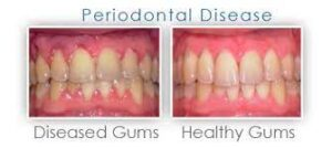 Colour of unhealthy gums