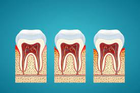Can you Grow your Gums Back