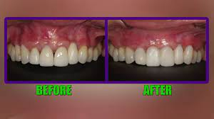 Do Your Gums Grow Back After Being Cut